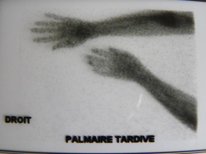 scintigraphie de l'avant bras droit aprés injection