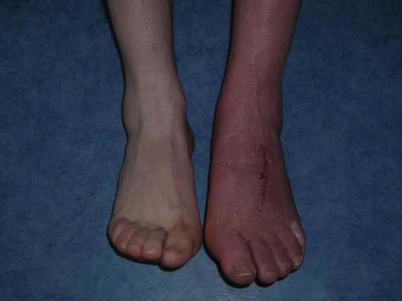 Algodystrophie for Douleur interieur pied gauche